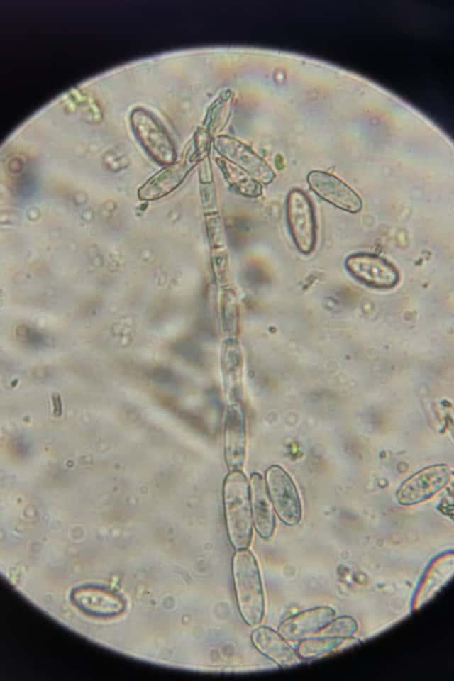 うどんこ病菌